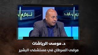 د. موسى الرياشات - مرضى السرطان في مستشفى البشير