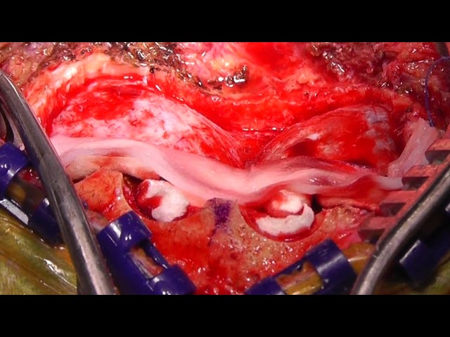 Intraoperative application of a new-generation 3D IV-DSA technology in resection of a hemorrhagic...