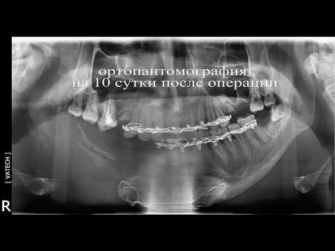 реконструкция нижней челюсти