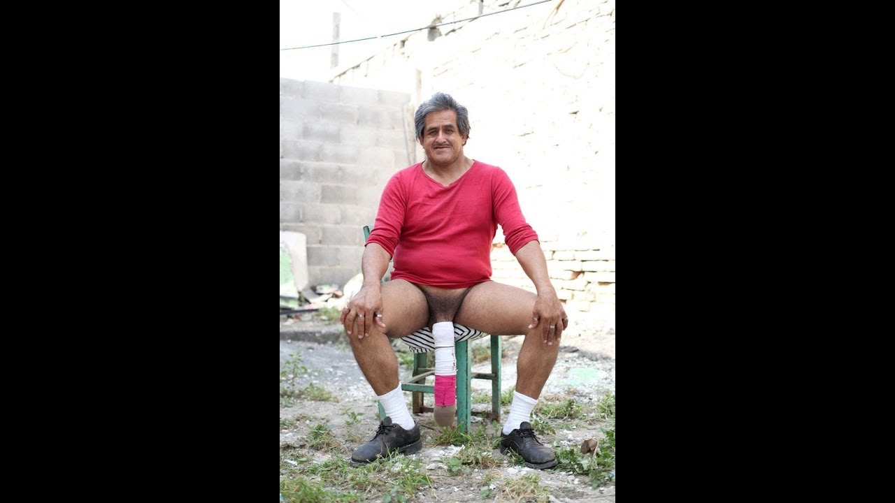 Who Is Roberto Esquivel Cabrera, Why Is His Penis So Large And Is It Really The Biggest In The World