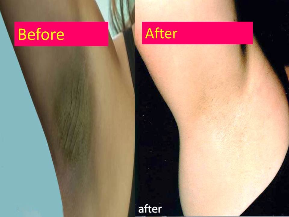 Black Skin After Using Natural Deodorant