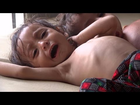 These are the cries of Yemen's starving