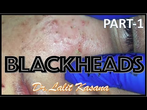 Blackhead removal by Dr Lalit Kasana (23/01/2019)