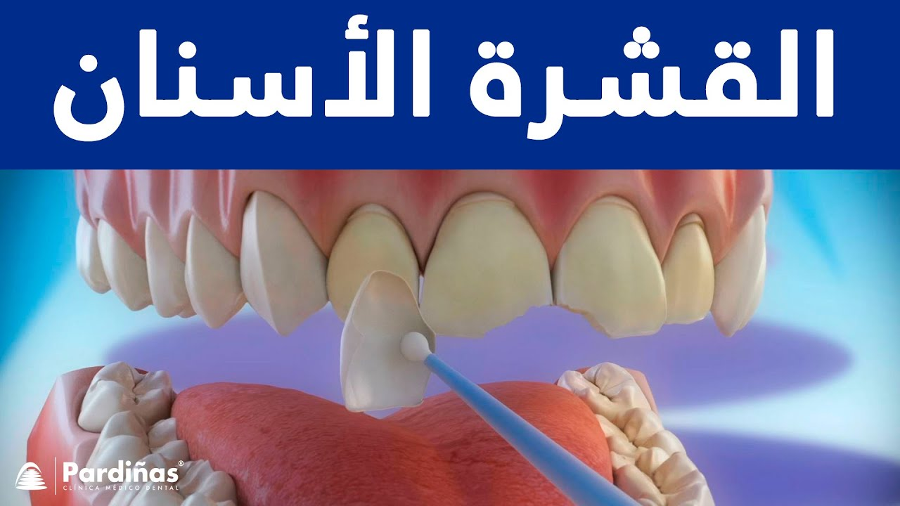 القشرة الأسنان C Youtube