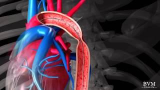 4.3 Streaming Hipertensi dan penyakit jantung hipertensi (dr Trisulo).