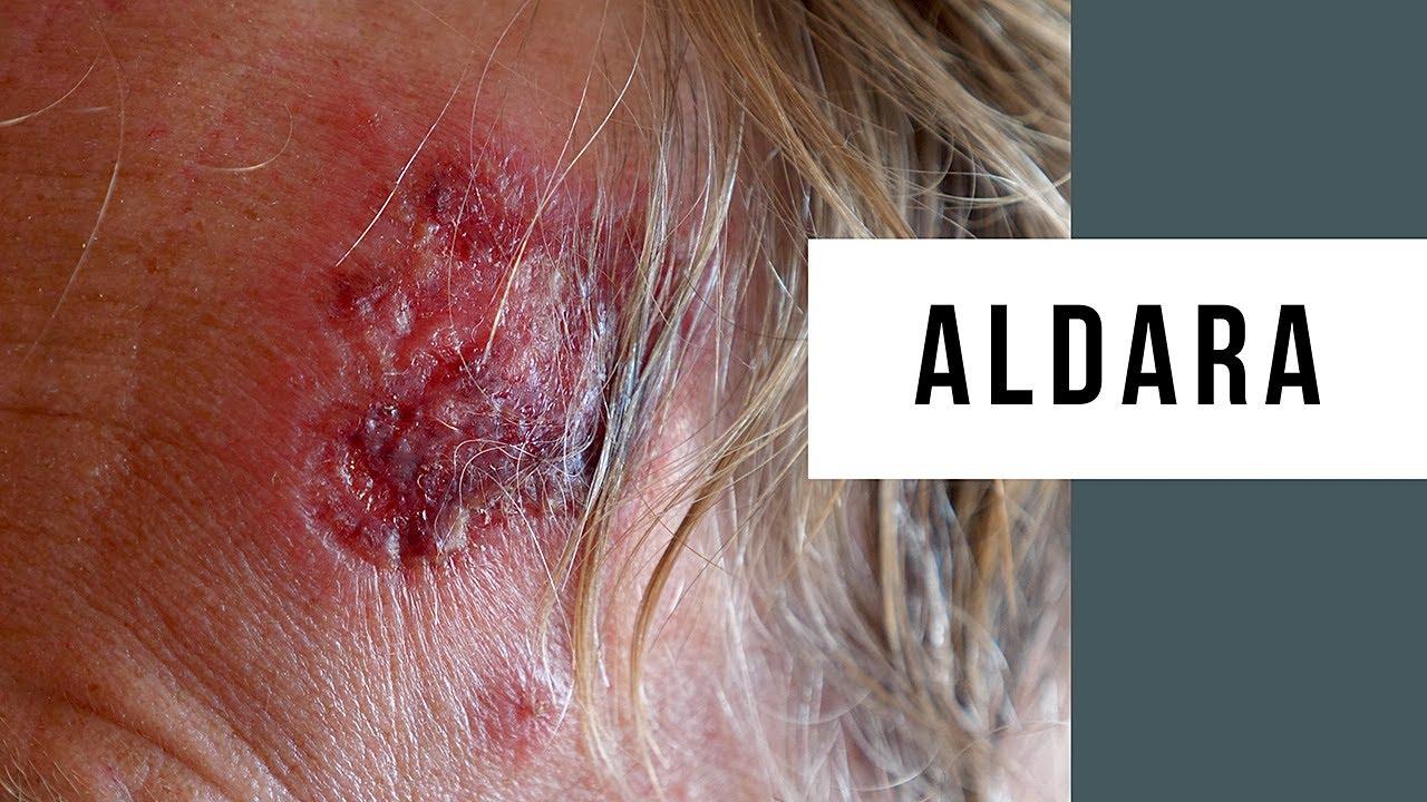 Skin Cancer Treatment Using Aldara Cream Youtube