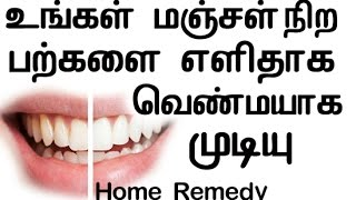Best Natural Home Remedy For Yellow Teeth | Home remedy