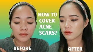 Cover images HOW TO COVER ACNE SCARS AND BLEMISHES WITH MAKEUP + COLOR CORRECTOR! // MAKEUP WITH JONZ