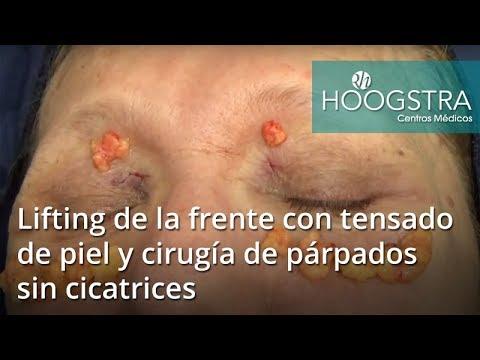 Lifting de la frente con tensado de piel y cirugía de párpados sin cicatrices (18042)