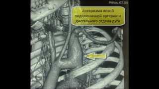 КТ грудной клетки: Аневризма подключичной артерии(http://www.medglobus.ru/Medarticles-Angiology-Computed%20Tomography%20Angiogram.htm и http://www.medglobus.ru/Medarticles-Angiology.htm Здесь ..., 2012-07-05T17:51:29.000Z)