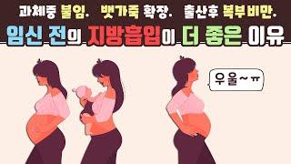 임신 계획시에 지방흡입…