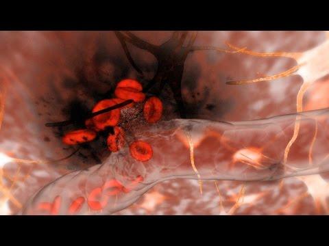 Hemorrhagic Stroke (Brain Hemorrhage)