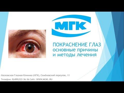 Покраснение глаз, полезные советы
