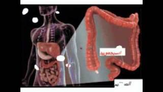 Cancer colorectal-  Gastro casa procto casa سرطان القولون و المستقيم  -Version en Arabe-