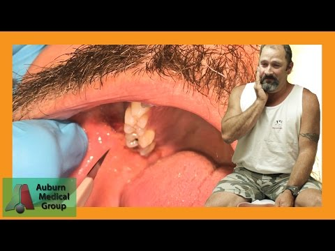 PAINFUL DENTAL ABSCESS DRAINED | Auburn Medical Group