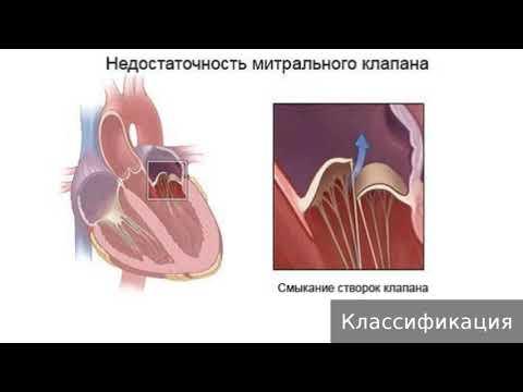 Недостаточность митрального клапана. Как лечить недостаточность митрального клапана.