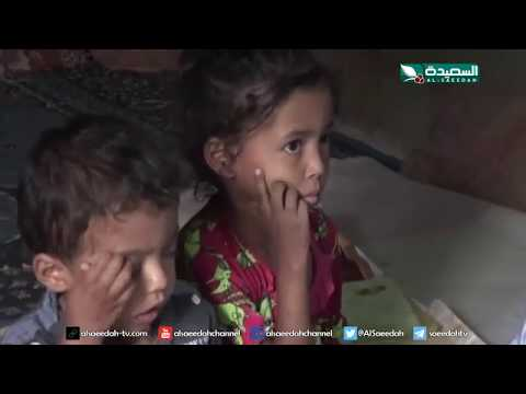 سنابل الخير - معاناة أسرة يعاني ثلاثة من أطفالها من الثلاسيميا 22-7-2019م