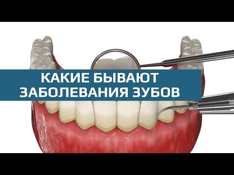 Киста зуба -