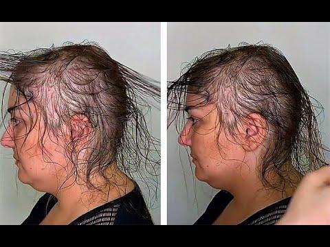 Она круто изменила женщину с очень редкими волосами. Посмотри,что в итоге получилось! Талант!