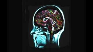 DJ Trance-istor - Nation of Psychedelics
