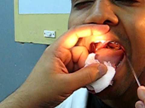 indirect laryngoscopy 2of2  YouTube