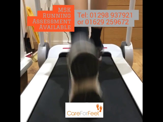 MSK Running Assessment Available