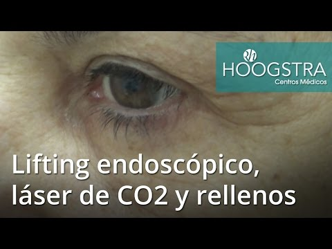 Lifting endoscópico, láser de CO2 y rellenos faciales (16058)