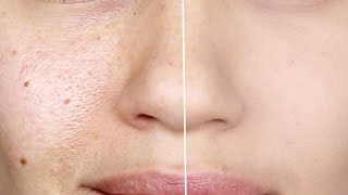 One of EMAN's most viewed videos: How to make Pores Disappear! | How to make Large Pores Vanish | Eman
