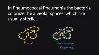 Pneumonia & Covid-19 | Dokter Talk Health & Solution.