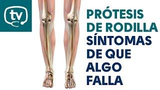 Rodilla de dolor nervioso la en rodilla del después reemplazo