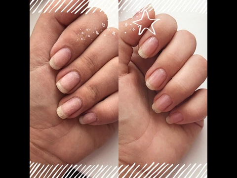 Спасти ногти после гель-лака: это просто! - Woman