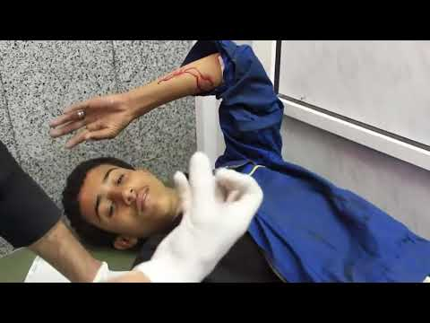 Yemen; Wounded People Treated In Sanaa Hospital Amid Fighting