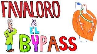 ¿Qué es el BYPASS CORONARIO?