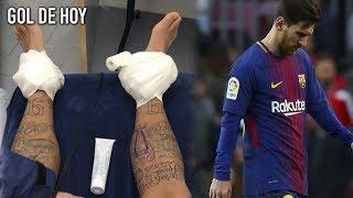 """Así quedó Neymar antes del PSG vs Madrid I """"Messi lloró en el vestuario"""" Alexis Sánchez"""