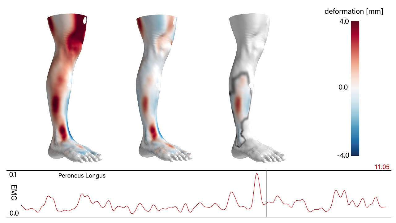 2820c79bb2145 DREMATRIX - Estimation of Muscle Activity in One-Leg Stance from 3D Surface  Deformation