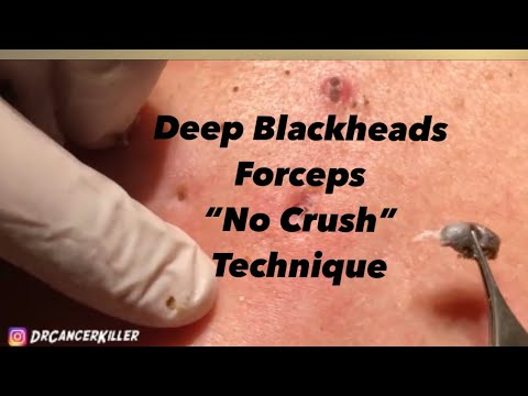 Download Blackhead REVENGE Part 1 of 3 (part 2  will be published 6/15/19 subscribe to see it)