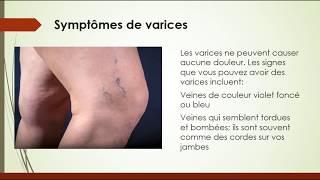 Varices: symptômes, cause, traitement et prévention