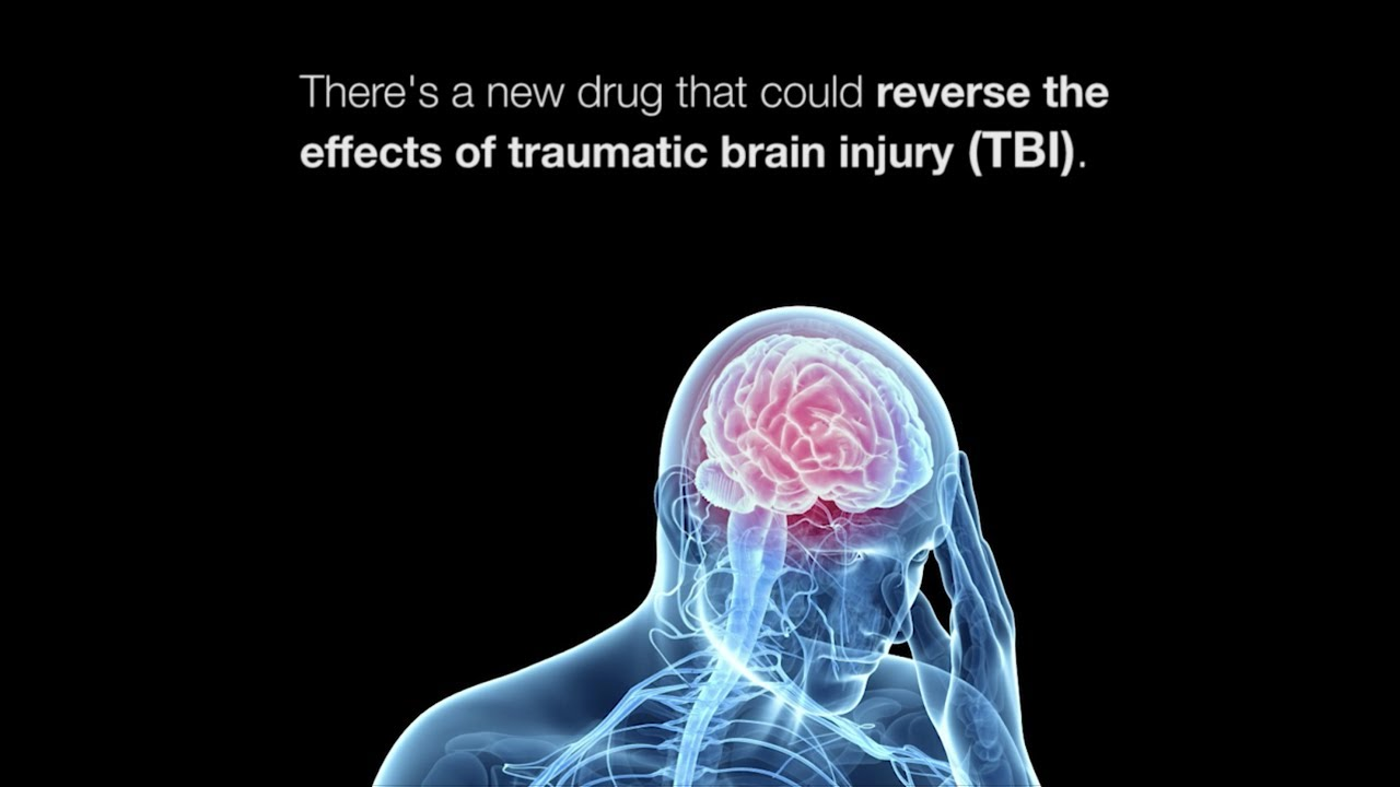 How Students Brains Are In Danger On >> With Dangers Of Everyday Concussions Revealed Scientists Race To