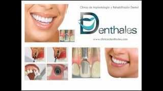 Clínica de Implantes Dentales en Lima y Trujillo - Perú - Clínica DENTHALES.
