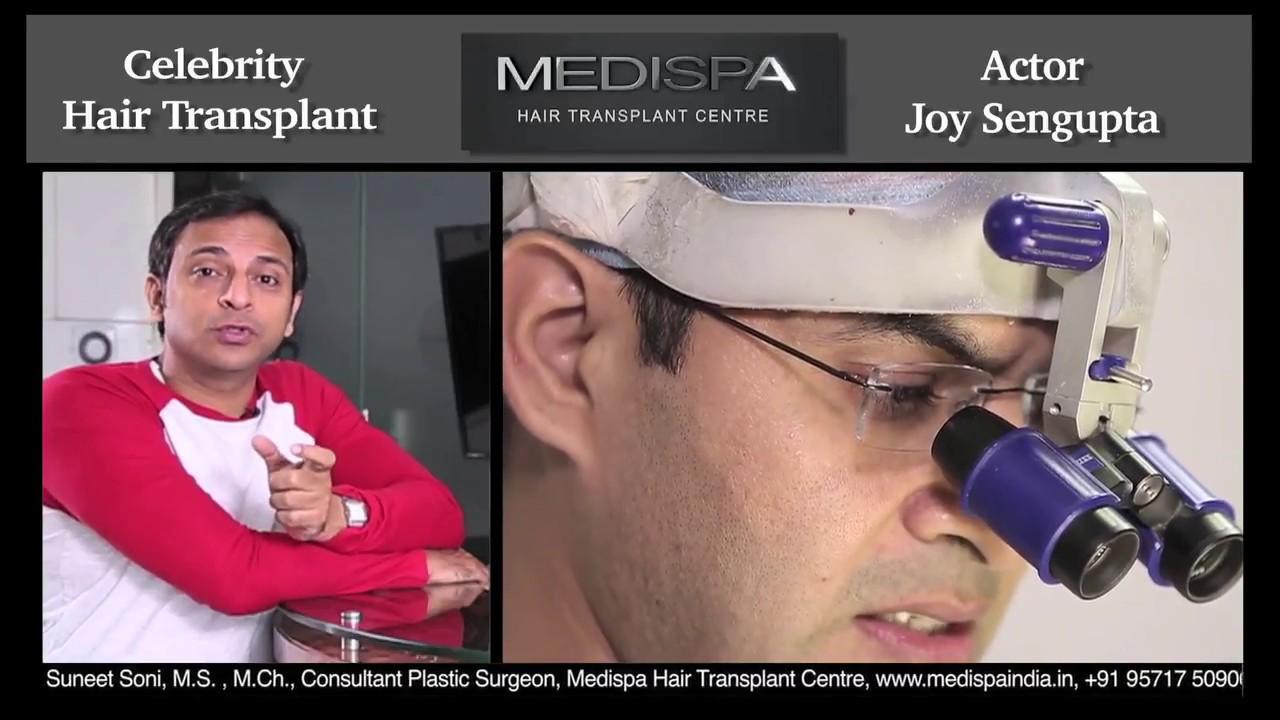 Celebrity Hair Transplant | Top Celebrity Hair Transplant