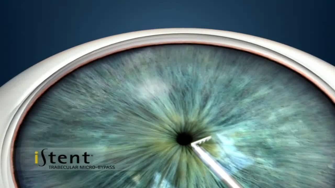 prednisolon acis 20mg