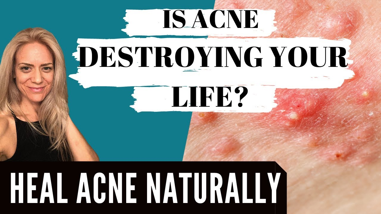 Is Acne Destroying Your Life?