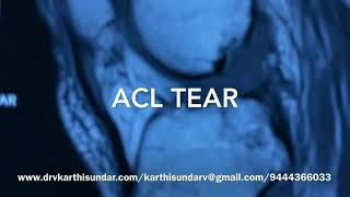 MULTILIGAMENT INJURY KNEE- SINGLE STAGE ARTHROSCOPIC ACL & PCL RECONSTRUCTION
