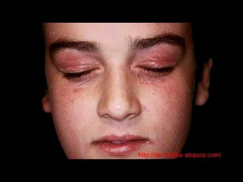 El calmante de la psoriasis