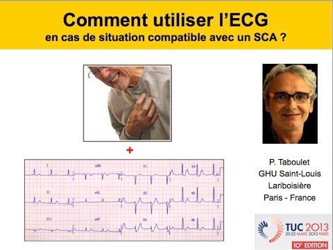8d. SCA. Raisonnement médical combinant clinique et ECG. P. Taboulet