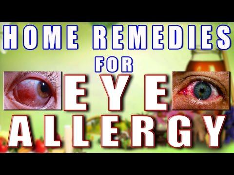 Home Remedies for Eye Allergy II आँखों की एलर्जी का घरेलू उपचार II