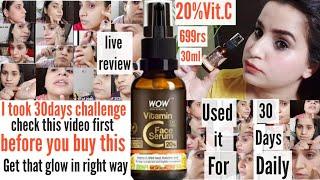 #wowvitcserum|30days challenge with Wow Vitamin c serum|20%Vitamin C serum for face|Bhawna sharma
