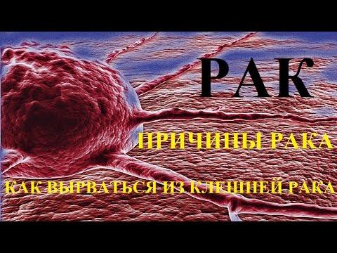 Рак легких - Причины, симптомы и лечение. МЖ.