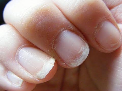 El tratamiento de las uñas contra el hongo-onihomikoza