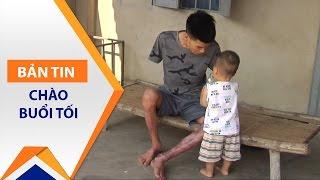 Cụt tay, vợ bỏ, chàng trai 'gà trống nuôi con' | VTC